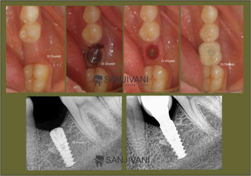 Dental implant in rajkot