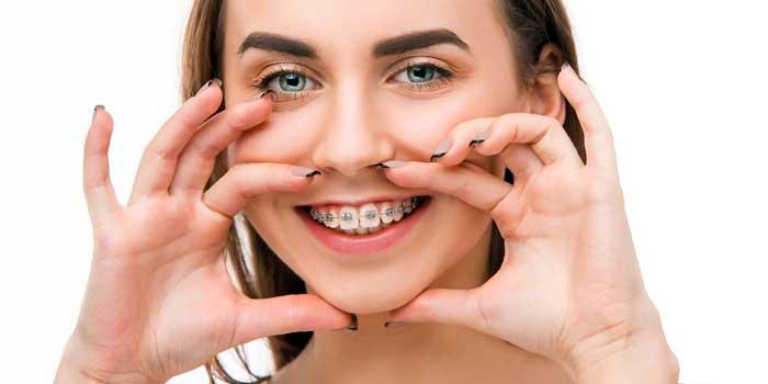 orthodontic braces treatment in rajkot