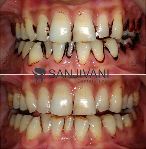 gutkha-stain-removal-on-teeth