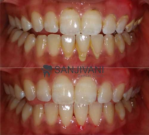 tooth-cleaning-in-rajkot