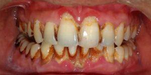 gum-pain-rajkot