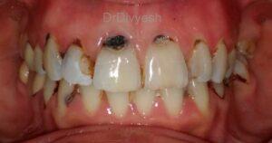 how teeth get decay