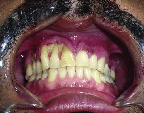 mucormycosis-in-rajkot-sanjivani-dental-clinic